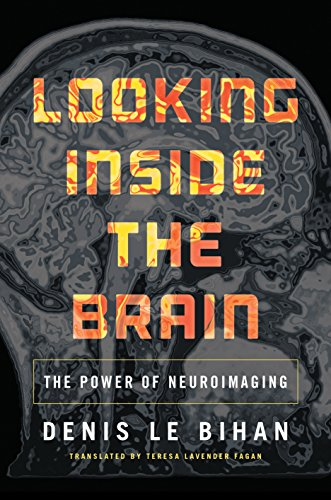 looking-inside-the-brain-the-power-of-neuroimaging