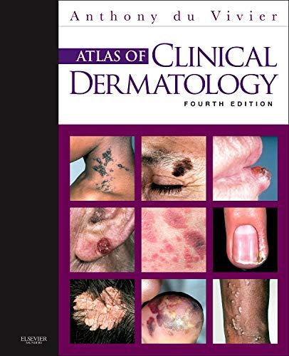 atlas-of-clinical-dermatology-4e-du-vivier-atlas-of-clinical-dermatology