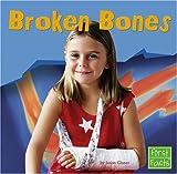 Glaser: Broken Bones (First Facts)
