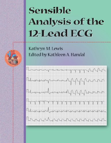 sensible-analysis-of-the-12-lead-ecg