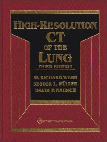 high-resolution-ct-of-the-lung