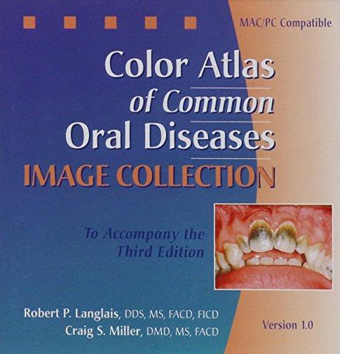 color-atlas-of-common-oral-diseases-image-bank
