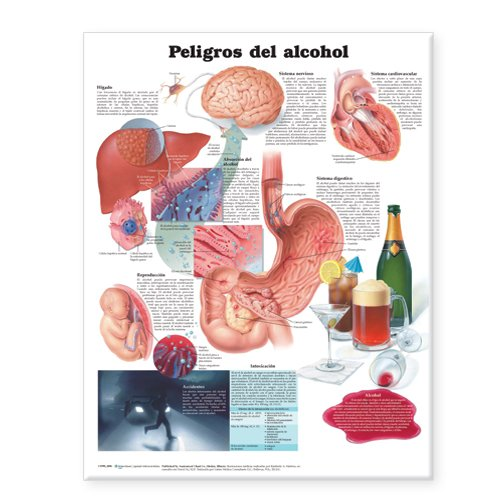 dangers-of-alcohol-anatomical-chart-in-spanish-peligros-del-alcohol