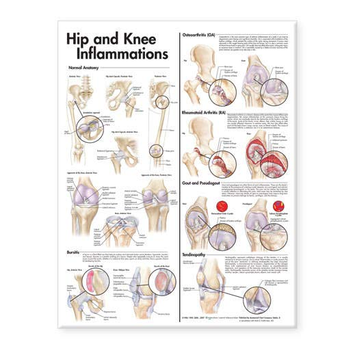hip-and-knee-inflammations-anatomical-chart