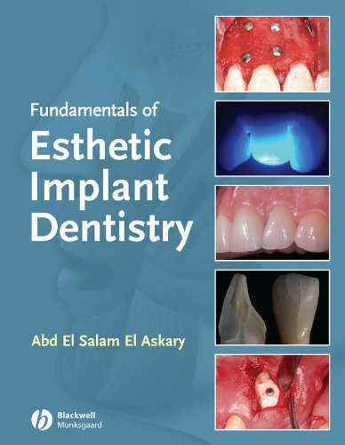 fundamentals-of-esthetic-dentistry-second-edition