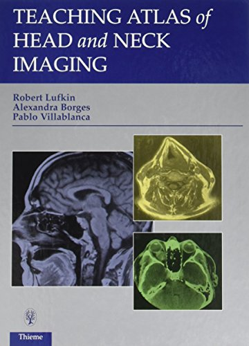 teaching-atlas-of-head-and-neck-imaging