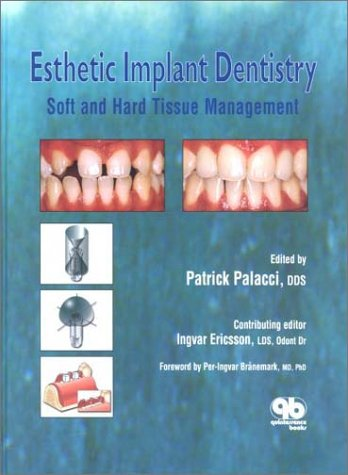esthetic-implant-dentistry-soft-and-hard-tissue-management