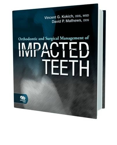 orthodontic-and-surgical-management-of-impacted-teeth