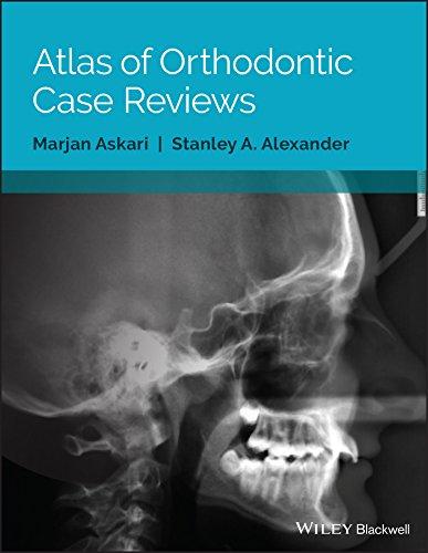 atlas-of-orthodontic-case-reviews