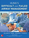 Management of the Failed Difficult and Failed Airway
