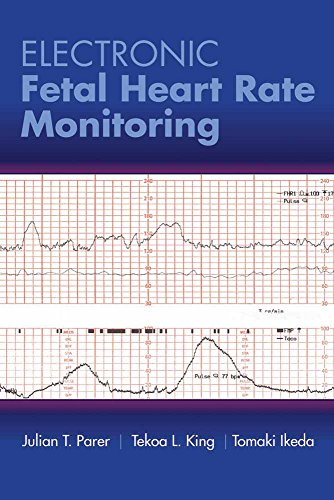 electronic-fetal-heart-rate-monitoring-the-5-tier-system