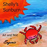 Eugenie: Shelly's Sunburn