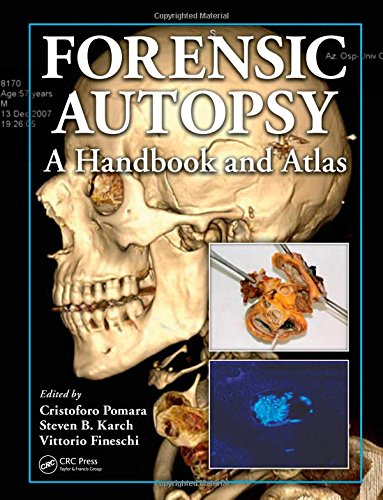 forensic-autopsy-a-handbook-and-atlas