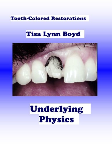 tooth-colored-restorations-underlying-physics