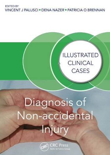 diagnosis-of-non-accidental-injury-illustrated-clinical-cases
