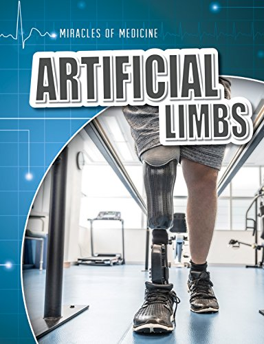 artificial-limbs-miracles-of-medicine