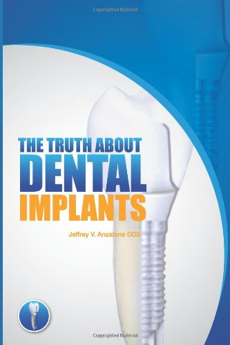 the-truth-about-dental-implants