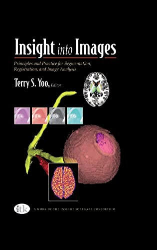 insight-into-images-principles-and-practice-for-segmentation-registration-and-image-analysis
