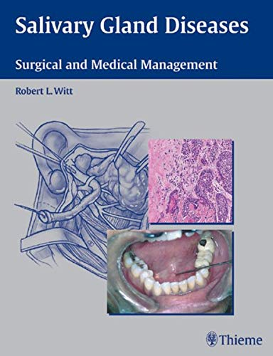 salivary-gland-diseases-surgical-and-medical-management