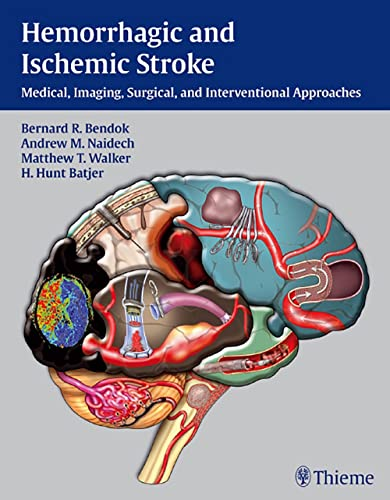 hemorrhagic-and-ischemic-stroke-medical-imaging-surgical-and-interventional-approaches
