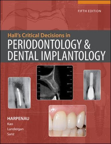 halls-critical-decisions-in-periodontology