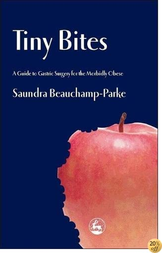 Tiny Bites: A Guide to Gastric Surgery for the Morbidly Obese