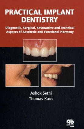practical-implant-dentistry-diagnostic-surgical-restorative-and-technical-aspects-of-aesthetic-and-functional-harmony