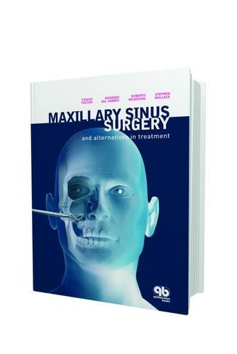 maxillary-sinus-surgery-and-alternatives-in-treatment