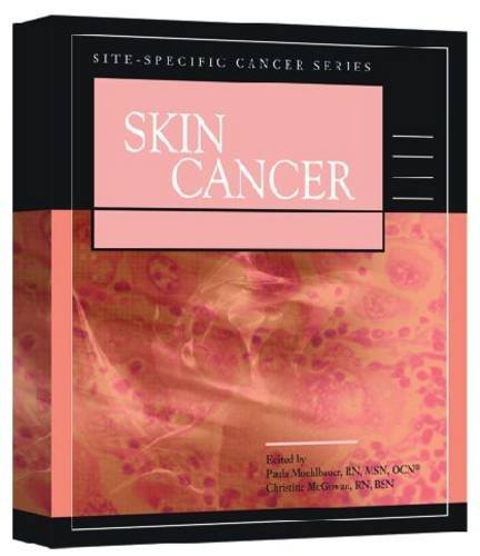 skin-cancer-site-specific-cancer-series