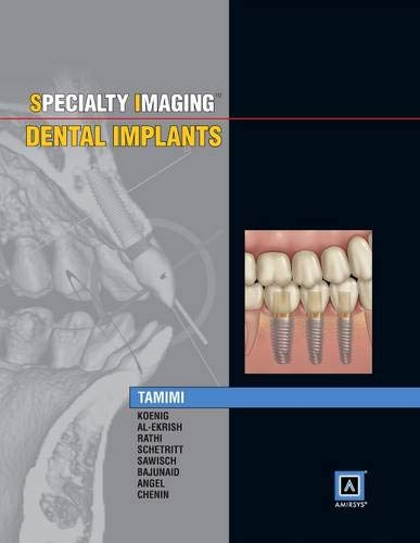 specialty-imaging-dental-implants-1e