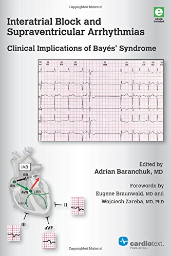 interatrial-block-and-supraventricular-arrhythmias-clinical-implications-of-bayes-syndrome