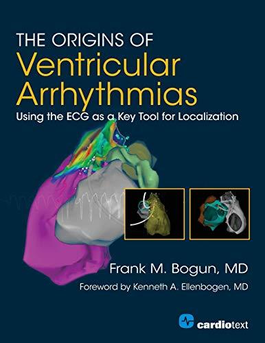the-origins-of-ventricular-arrhythmias-using-the-ecg-as-a-key-tool-for-localization