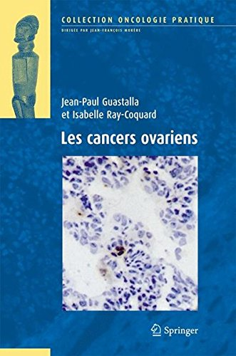 les-cancers-ovariens-oncologie-pratique-french-edition
