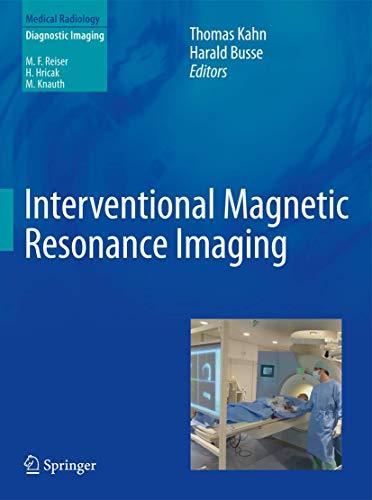 interventional-magnetic-resonance-imaging-medical-radiology
