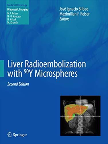 liver-radioembolization-with-90y-microspheres-medical-radiology