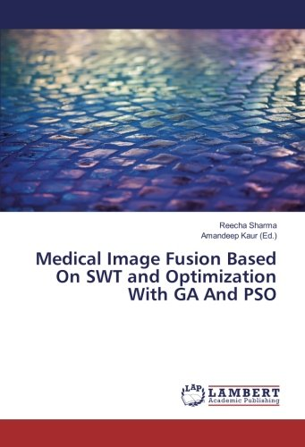 medical-image-fusion-based-on-swt-and-optimization-with-ga-and-pso