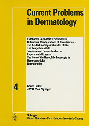 current-problems-in-dermatology-current-problems-in-dermatology-vol-4-v-4