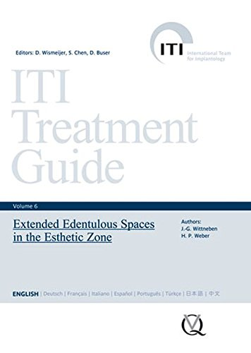 iti-treatment-guide-vol-6-extended-edentulous-spaces-in-the-esthetic-zone-iti-treatment-guides