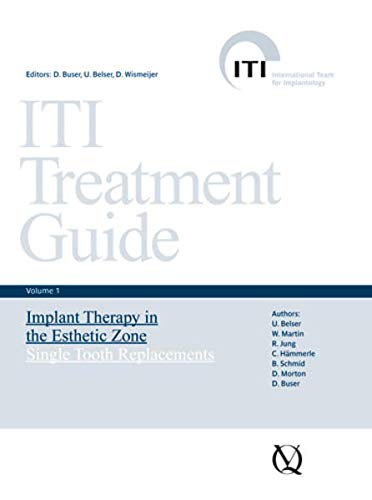 iti-treatment-guide-volume-1-implant-therapy-in-the-esthetic-zone-for-single-tooth-replacements
