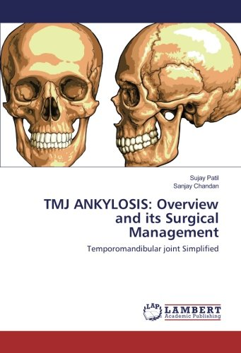 tmj-ankylosis-overview-and-its-surgical-management-temporomandibular-joint-simplified