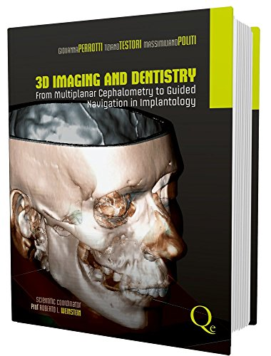 3d-imaging-and-dentistry-from-multiplane-cephalometry-to-guided-navigation-in-implantology