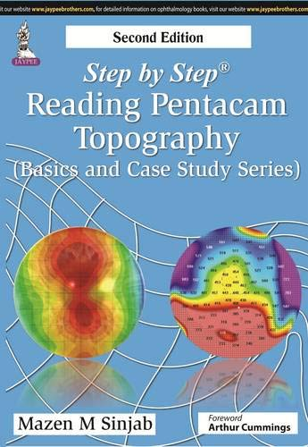 step-by-step-reading-pentacam-topography