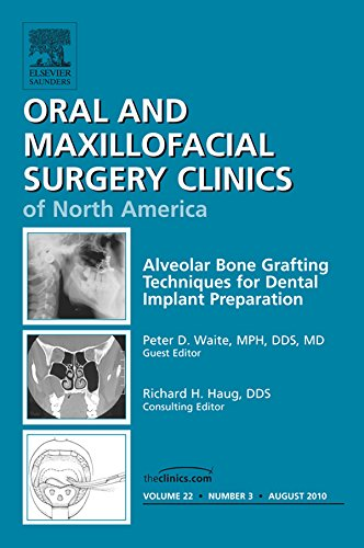 alveolar-bone-grafting-techniques-in-dental-implant-preparation-an-issue-of-oral-and-maxillofacial-surgery-clinics-e-book-the-clinics-dentistry