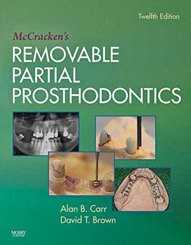 mccrackens-removable-partial-prosthodontics-e-book