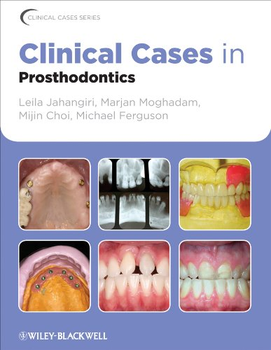 clinical-cases-in-prosthodontics-clinical-cases-dentistry