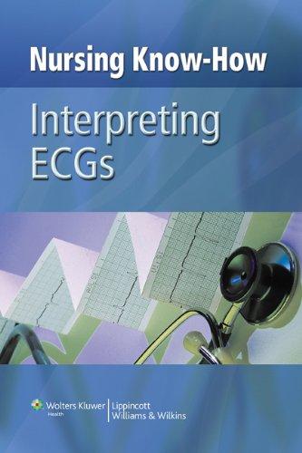 nursing-know-how-interpreting-ecgs