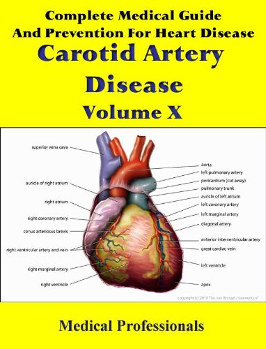 complete-medical-guide-and-prevention-for-heart-disease-volume-x-carotid-artery-disease