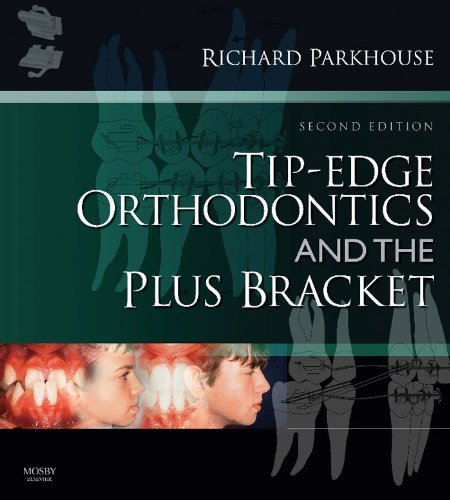 tip-edge-orthodontics-and-the-plus-bracket-e-book
