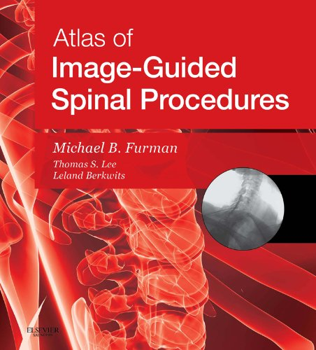 atlas-of-image-guided-spinal-procedures-e-book