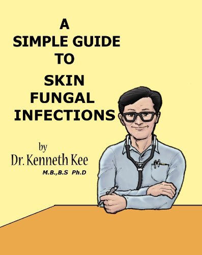 a-simple-guide-to-skin-fungal-infections-a-simple-guide-to-medical-conditions
